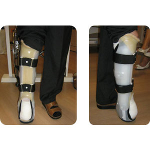 TUTORE GAMBA PIEDE WALKING BRACE SU CALCO