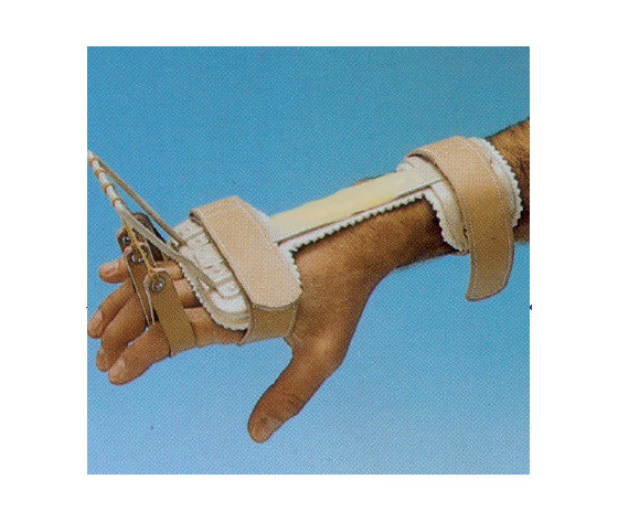 Ferula per il controllo della metacarpofalangea e l'estensione delle dita,realizzata su Misura
