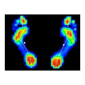 Visita posturale con esame baropodometrico e stabilometrico - 75% sconto